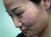 Bác sĩ Vũ Hán mặt hằn vết khẩu trang, đóng tã khi làm việc