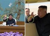 Báo Hàn: Ông Kim Jong-un có thể đã trải qua thủ thuật y tế