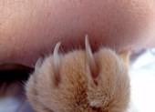Thanh niên mắc chứng bất lực sau khi bị mèo cào