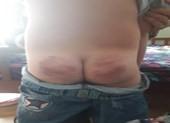 Khiển trách thầy giáo đánh bầm mông học trò ở An Giang