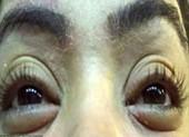 Hàng chục người nhiễm bọ ve trên mí mắt do nối mi