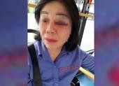 Nữ tiếp viên bị đánh bầm mắt vì nhắc khách mở nhạc nhỏ