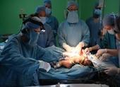 18 bác sĩ tách thành công cặp song sinh dính liền phần gan