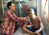 Đau đớn học sinh bỏng cồn trong phòng thí nghiệm