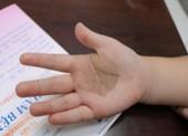 Chân tay trẻ có dát nâu đen, cha mẹ chớ coi thường