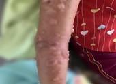 Bé gái nhập viện vì bỏng da nặng do tiếp xúc sứa biển