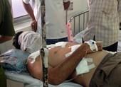 Một đại gia bị tạt a-xít khi đang ăn sáng