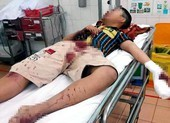 Dùng bột diêm để chế pháo, thiếu niên bị thương