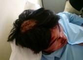 Học sinh lớp 11 nhập viện cấp cứu vì bị nhóm bạn đánh