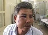 Nhân viên Trung tâm công viên cây xanh bị đánh nhập viện