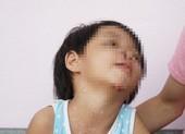 Xử nghiêm vụ bé gái 4 tuổi bị cha dượng bạo hành