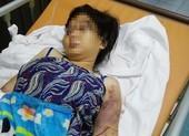 Truy tố 3 người tra tấn cô gái đến sẩy thai ở Bình Chánh