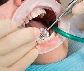 Nha sĩ bẻ răng bệnh nhân để lừa đảo tiền bảo hiểm