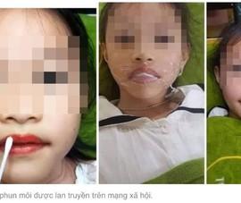 Cha phun xăm môi cho con gái 5 tuổi có phạm luật?