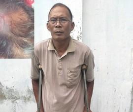 Đề nghị truy tố 2 cha con đánh gãy chân ông thợ hồ