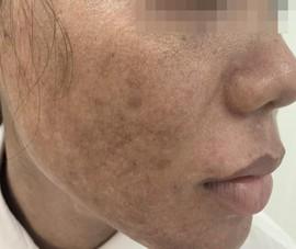 Trẻ hóa da bằng laser: Coi chừng già và xấu hơn!