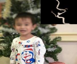 Bé trai 3 tuổi đột quỵ vì nguyên nhân không ngờ