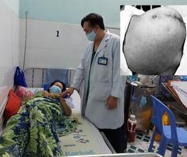 Ung thư giai đoạn muộn do bụng căng lên mà không đi khám