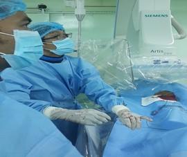 Cứu sống người bị vỡ gan phức tạp mà không cần phẫu thuật