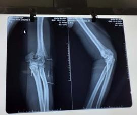 3 giờ phẫu thuật nối cánh tay cho Thượng úy Hoàng Văn Dương