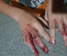 Vụ 'đánh cháu bé nát tay, bắt bán vé số': Hàng xóm nói gì?