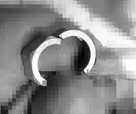 Giải cứu người đàn ông đeo vòng kim loại vào dương vật