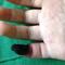 Hoại tử ngón tay sau khi bôi thuốc trị mụn cóc mua trên mạng