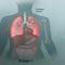 Tầm soát và phòng ngừa ung thư phổi sao cho hiệu quả?