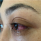 Căn bệnh không ngờ khiến mắt cô gái suýt mù