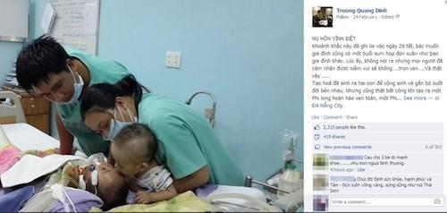 Bức ảnh chụp hai bé hôn nhau trên giường bệnh với tựa đề 'Nụ hôn vĩnh biệt' được Bác sĩ Trương Quang Định- người trực tiếp thực hiện ca phẫu thuật tách rời 2 bé sơ sinh dính liền tim gan đăng tải trên Facebook cá nhân của mình ngày 24/2.