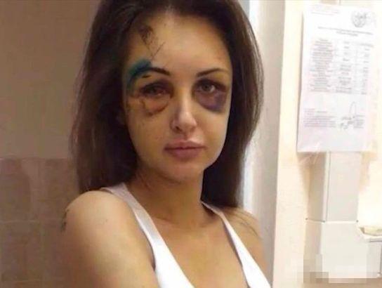 Siêu mẫu Nga biến dạng mặt vì bị người yêu đại gia đánh 4