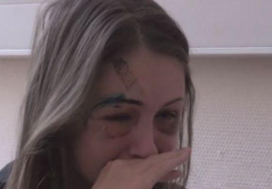 Siêu mẫu Nga biến dạng mặt vì bị người yêu đại gia đánh 2