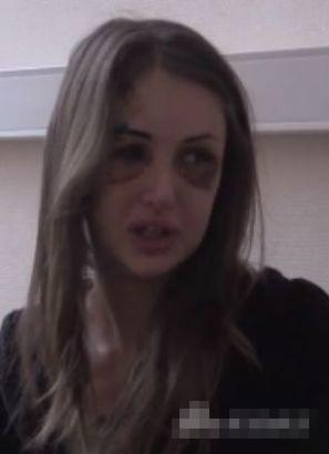 Siêu mẫu Nga biến dạng mặt vì bị người yêu đại gia đánh 3