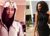 Nữ hoàng sắc đẹp Nigeria chết vì phẫu thuật mông
