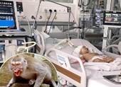 Kinh hoàng bé 14 tháng tuổi bị khỉ cắn rách đầu nguy kịch
