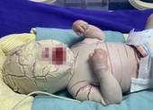 Quảng Ninh: Bé trai sinh non bị bệnh hiếm, vảy trắng toàn thân