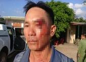 Một người đang 'tố' cán bộ nhận hối lộ bị đánh nhập viện