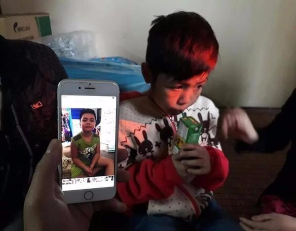 Cháu bé 10 tuổi bị rạn hộp sọ sau khi bị cha bạo hành.