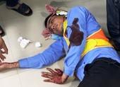 2 nhân viên trạm BOT bị đánh trọng thương khi đang làm việc