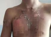 5 bé trai bị bắt nạt dã man ở trường nội trú Trung Quốc