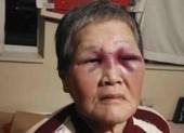 Cụ bà gốc Á bị tấn công ở Mỹ quyên góp được 1 triệu USD