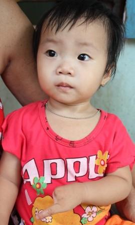 Bé Tiên sinh ra tứ chi chỉ 1 ngón giống cha, ông của mình