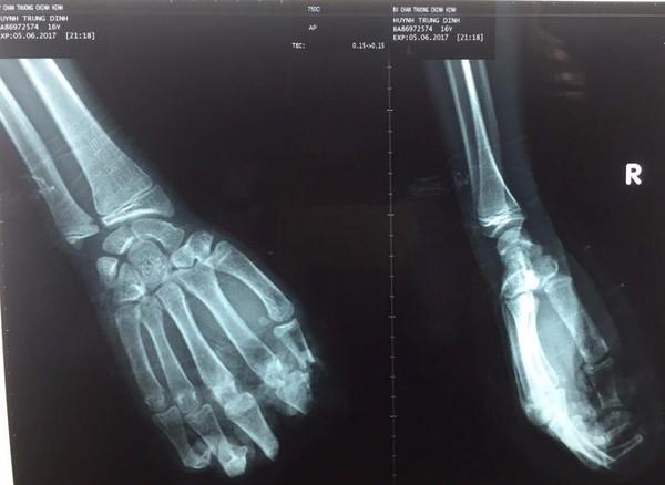 Kết quả chụp X quang cho thấy bốn ngón tay của em D bị đứt lìa.