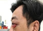 Chàng trai đột nhiên lồi mắt, suýt mù sau 2 năm bị té