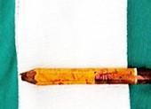 Nô đùa với bạn, bé trai bị bút chì đâm xuyên mông trái