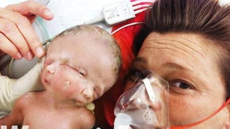 Hai bé ra đời sớm hơn 6 tuần so với dự kiến.