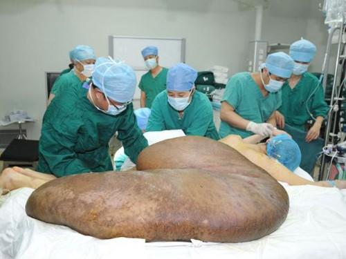 Ca phẫu thuật cắt bỏ khối u cho anh Yang diễn ra trong suốt 16 giờ