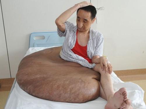 Anh Yang và khối u 110 kg