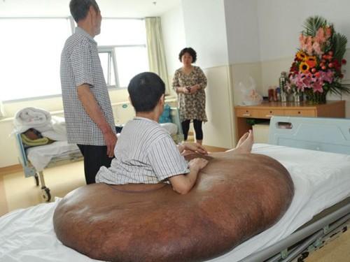 Các bác sĩ ở Bệnh viện Bắc Kinh đã vô cùng ngạc nhiên trước kích cỡ khổng lồ của khối u.
