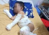 Bình Dương: 1 gia đình bị ném bom xăng, 2 bé trai bỏng nặng